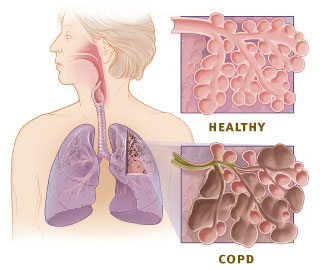 HelpHOPELive COPD symptoms stress