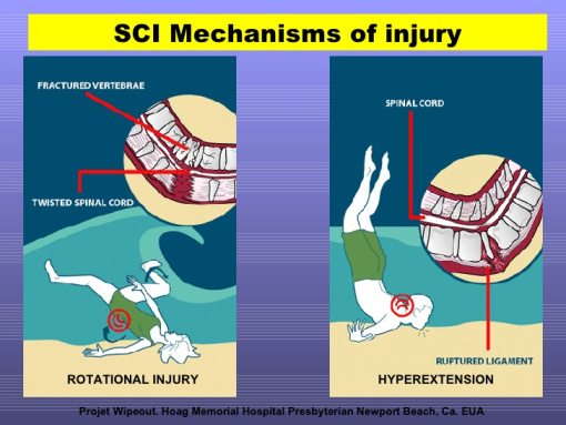Graphic of spinal cord injury diving into shallow water