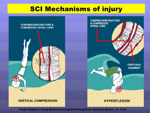 Second graphic of spinal cord injury diving into shallow water